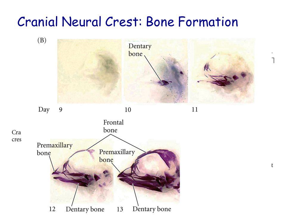 Cranial Neural Crest: Bone Formation