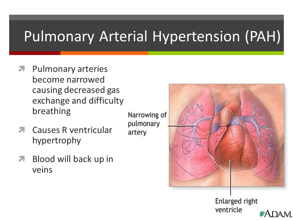 Pulmonary Arterial Hypertension (PAH)  Pulmonary arteries become narrowed causing decreased gas exchange and difficulty breathing  Causes R ventricu