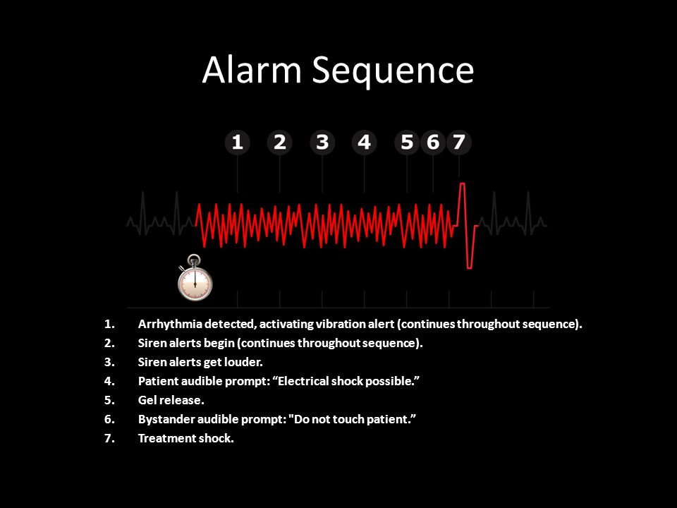 Alarm Sequence 1.Arrhythmia detected, activating vibration alert (continues throughout sequence).