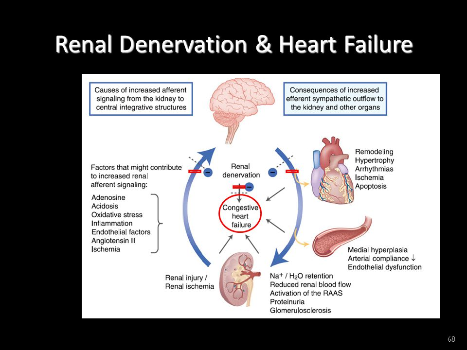 Renal Denervation & Heart Failure 68