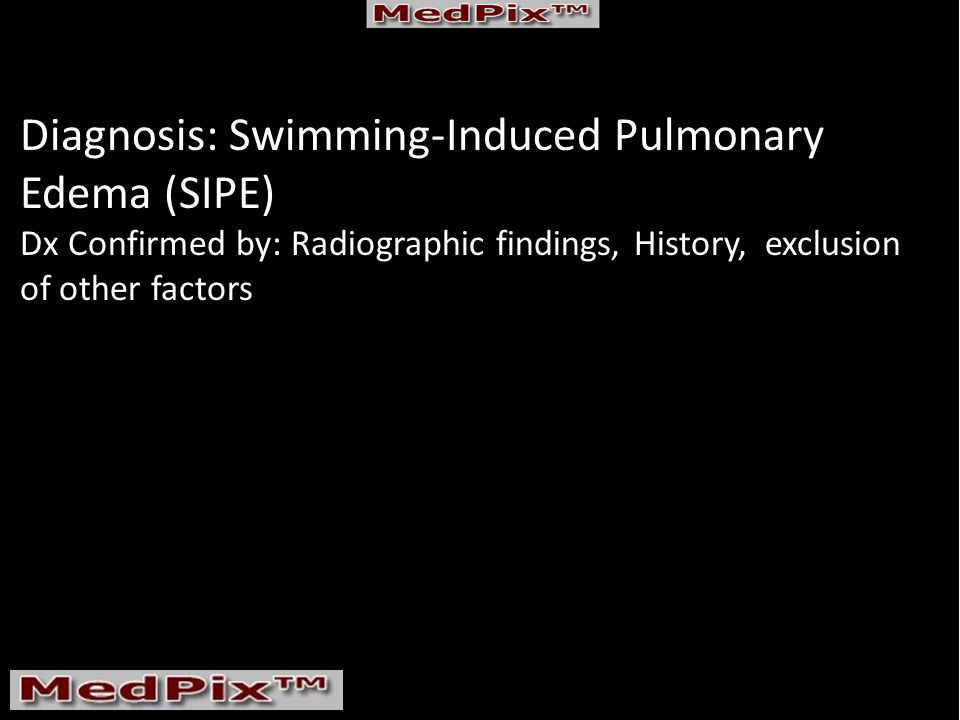 Diagnosis: Swimming-Induced Pulmonary Edema (SIPE) Dx Confirmed by: Radiographic findings, History, exclusion of other factors