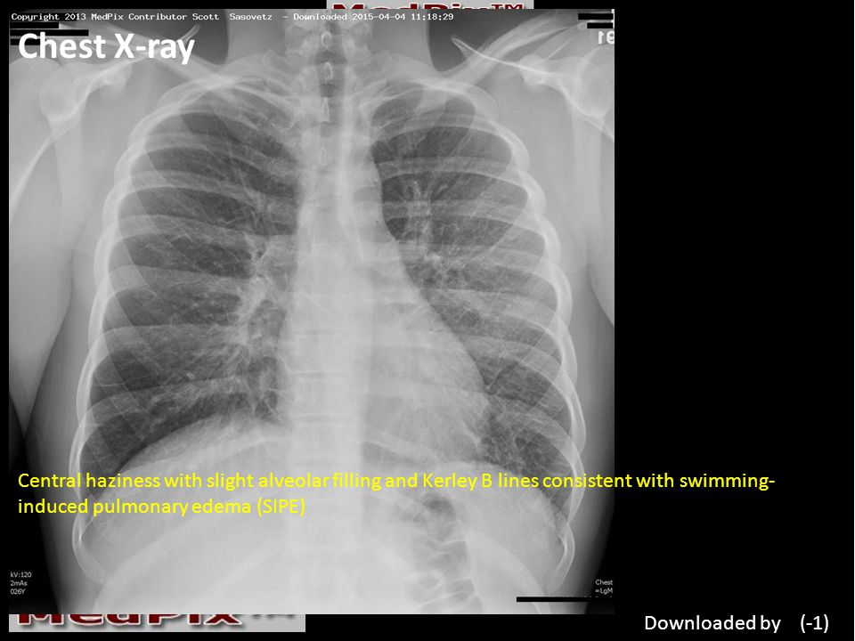 Chest X-ray Central haziness with slight alveolar filling and Kerley B lines consistent with swimming- induced pulmonary edema (SIPE) Downloaded by (-1)