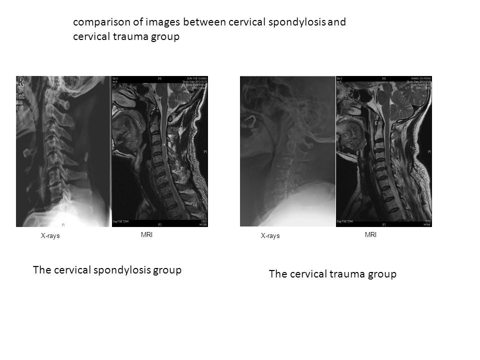 comparison of images between cervical spondylosis and cervical trauma group The cervical spondylosis group The cervical trauma group X-rays MRI X-rays MRI