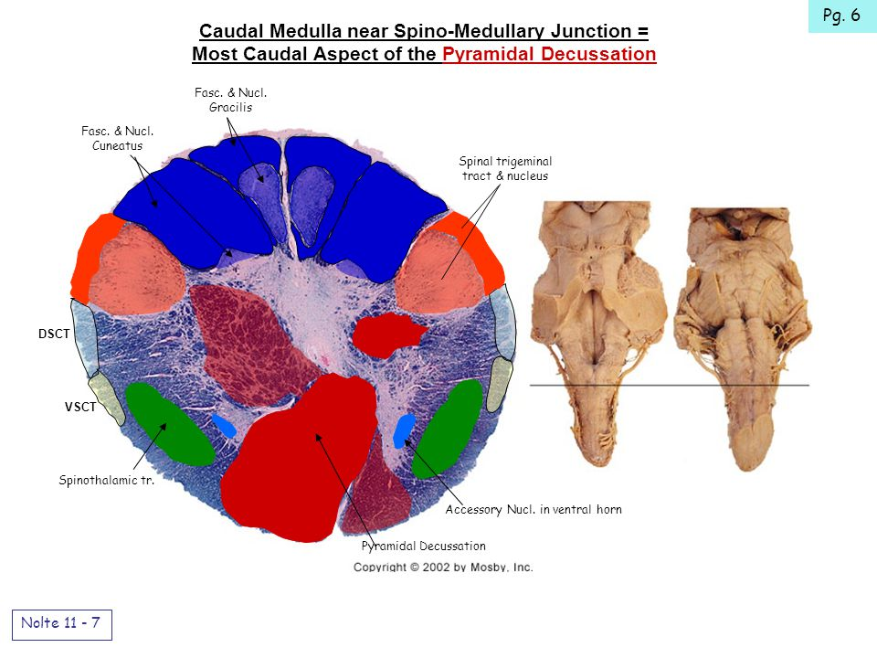 Caudal Medulla near Spino-Medullary Junction = Most Caudal Aspect of the Pyramidal Decussation Nolte 11 - 7 DSCT VSCT Spinal trigeminal tract & nucleus Spinothalamic tr.