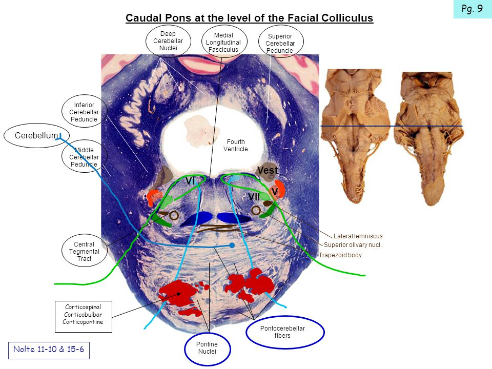 Caudal Pons at the level of the Facial Colliculus Nolte 11-10 & 15-6 VI VII Vest V Lateral lemniscus Superior olivary nucl.