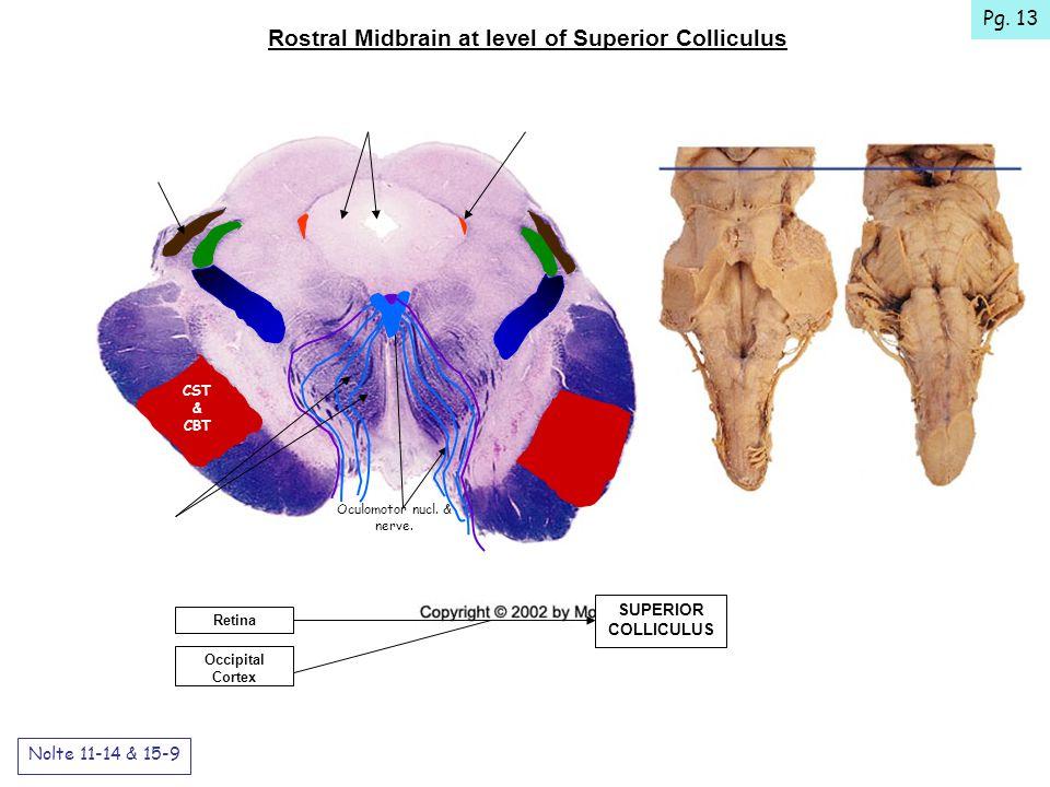 Rostral Midbrain at level of Superior Colliculus Nolte 11-14 & 15-9 SUPERIOR COLLICULUS Occipital Cortex Retina CST & CBT Oculomotor nucl.