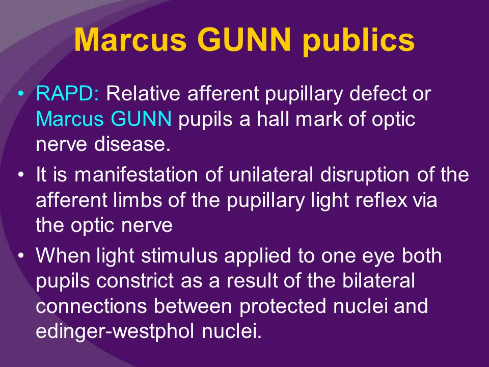 Marcus GUNN publics RAPD: Relative afferent pupillary defect or Marcus GUNN pupils a hall mark of optic nerve disease. It is manifestation of unilater