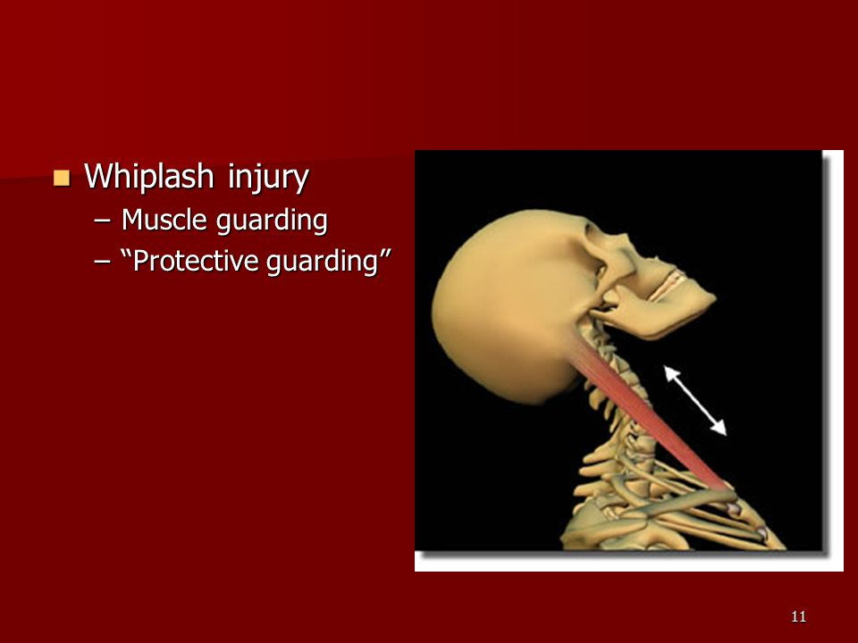 11 Whiplash injury Whiplash injury –Muscle guarding – Protective guarding