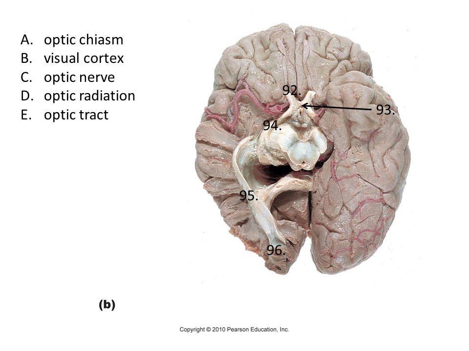 A.optic chiasm B.visual cortex C.optic nerve D.optic radiation E.optic tract 92. 93. 94. 95. 96.
