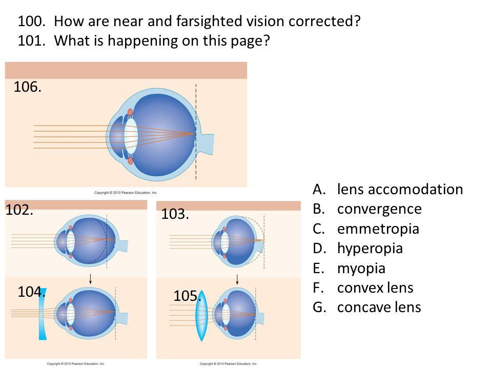A.lens accomodation B.convergence C.emmetropia D.hyperopia E.myopia F.convex lens G.concave lens 100.
