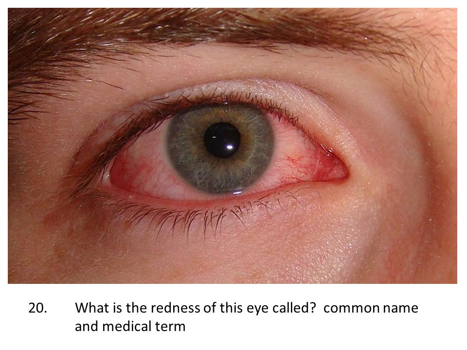 20.What is the redness of this eye called? common name and medical term