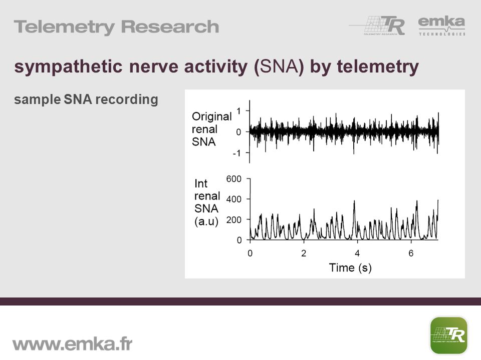 sympathetic nerve activity (SNA) by telemetry sample SNA recording