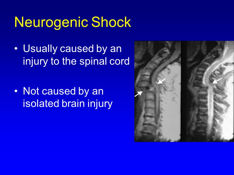 Neurogenic Shock Usually caused by an injury to the spinal cord Not caused by an isolated brain injury