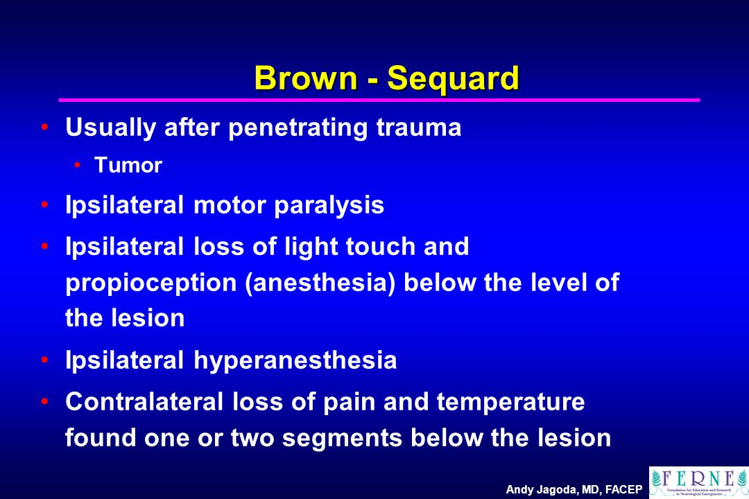 Andy Jagoda, MD, FACEP Brown - Sequard Usually after penetrating trauma Tumor Ipsilateral motor paralysis Ipsilateral loss of light touch and propioception (anesthesia) below the level of the lesion Ipsilateral hyperanesthesia Contralateral loss of pain and temperature found one or two segments below the lesion