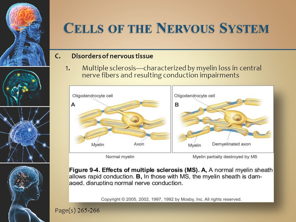 C ELLS OF THE N ERVOUS S YSTEM C.Disorders of nervous tissue 2.