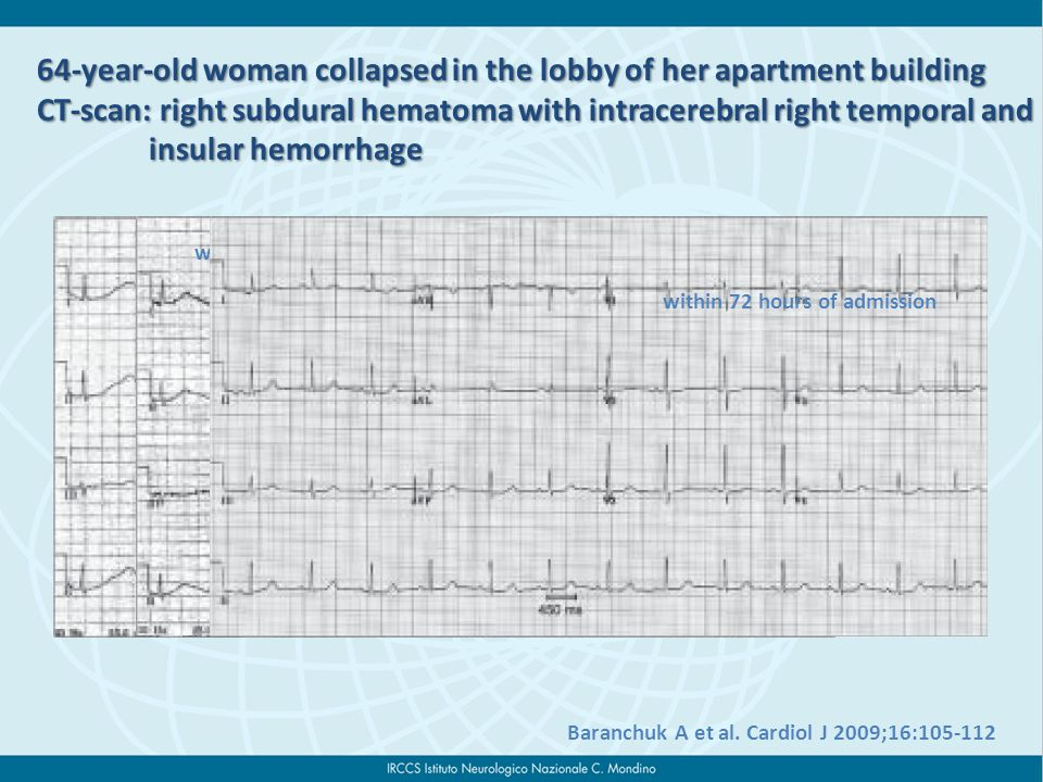 64-year-old woman collapsed in the lobby of her apartment building CT-scan: right subdural hematoma with intracerebral right temporal and insular hemorrhage insular hemorrhage Baranchuk A et al.