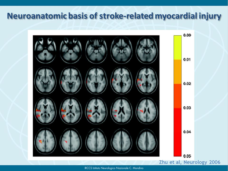 Neuroanatomic basis of stroke-related myocardial injury Zhu et al, Neurology 2006