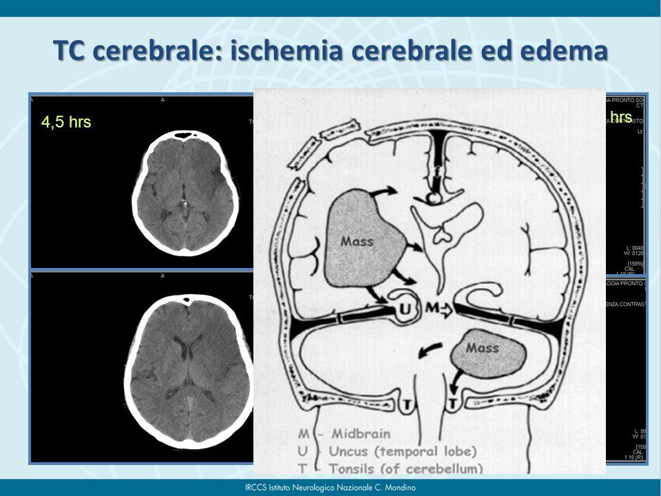 4,5 hrs 16 hrs TC cerebrale: ischemia cerebrale ed edema