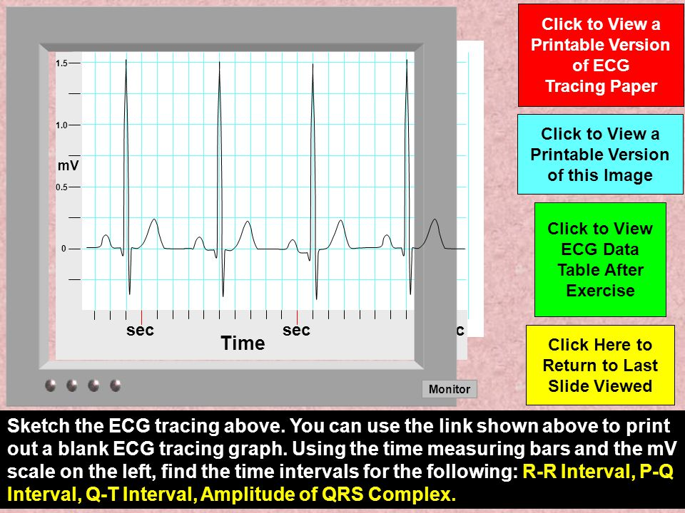 After entering the data from the ECG tracing calculate the Heart Rate at REST by using the formula given in the table.
