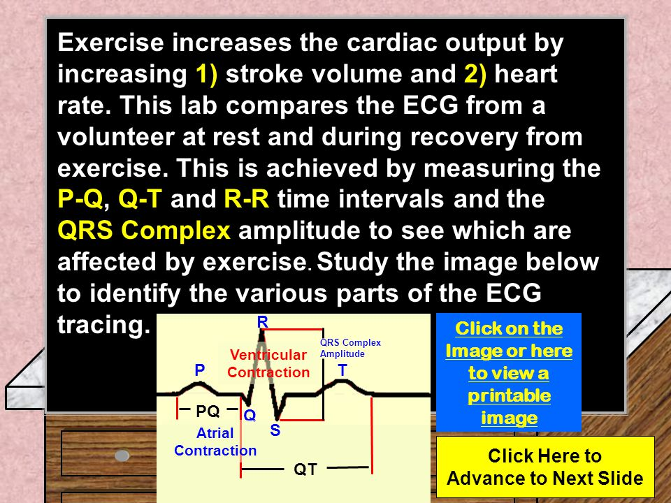 It is easy to monitor a subjects electrocardiogram (ECG) in the lab and determine any changes provoked by exercise.