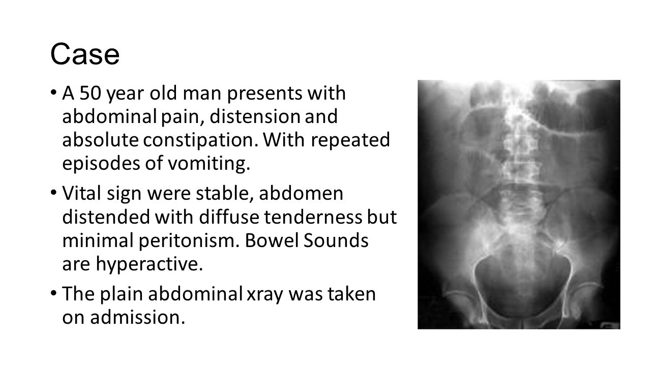 Case A 50 year old man presents with abdominal pain, distension and absolute constipation. With repeated episodes of vomiting. Vital sign were stable,