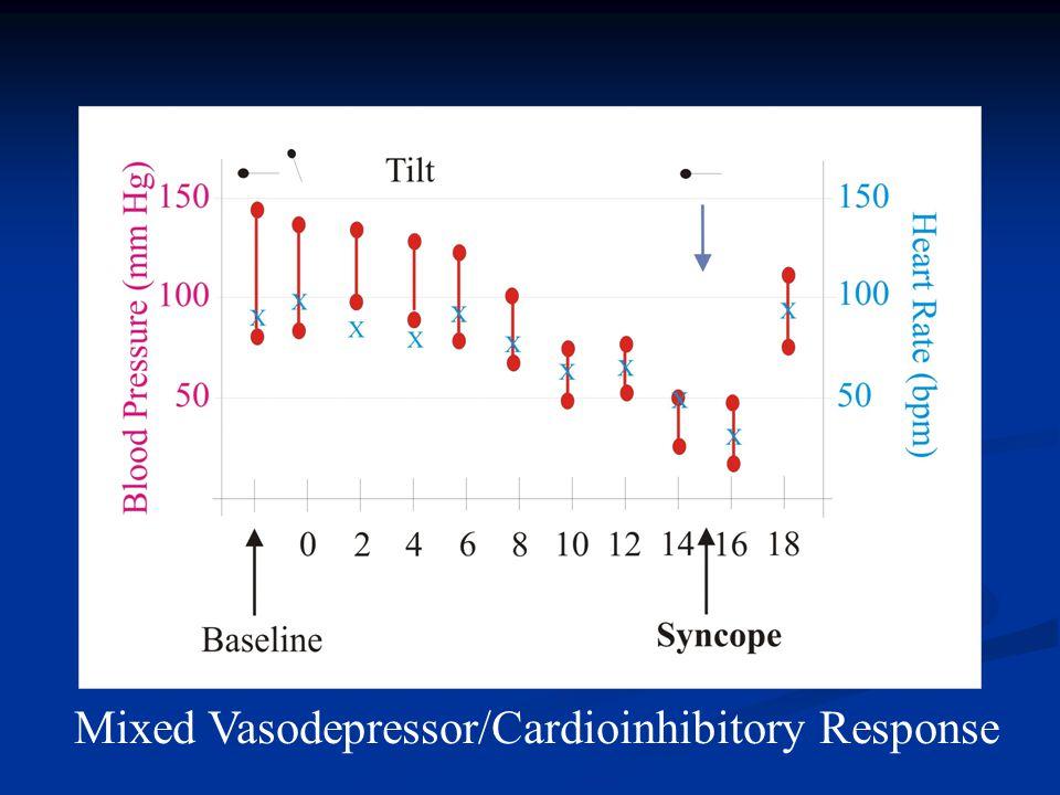 Mixed Vasodepressor/Cardioinhibitory Response