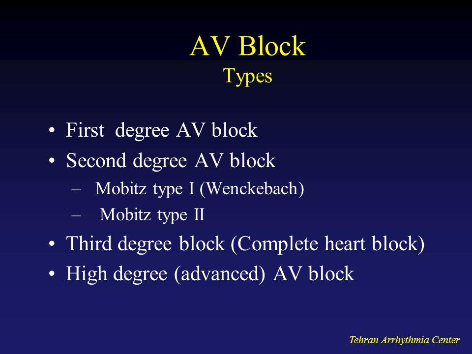 Tehran Arrhythmia Center AV Block Types First degree AV block Second degree AV block –Mobitz type I (Wenckebach) – Mobitz type II Third degree block (
