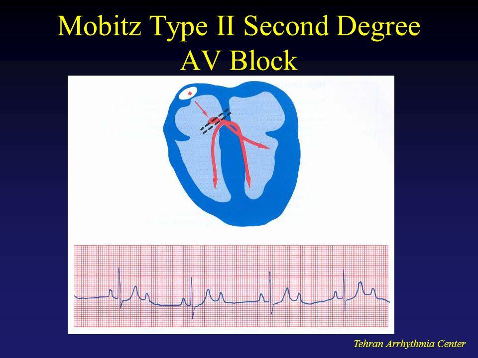 Tehran Arrhythmia Center Mobitz Type II Second Degree AV Block