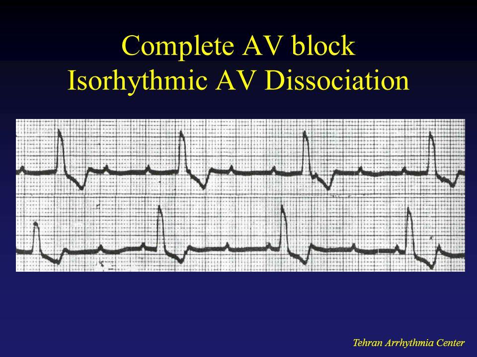 Tehran Arrhythmia Center Complete AV block Isorhythmic AV Dissociation