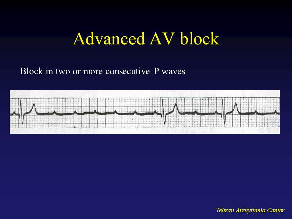 Tehran Arrhythmia Center Advanced AV block Block in two or more consecutive P waves