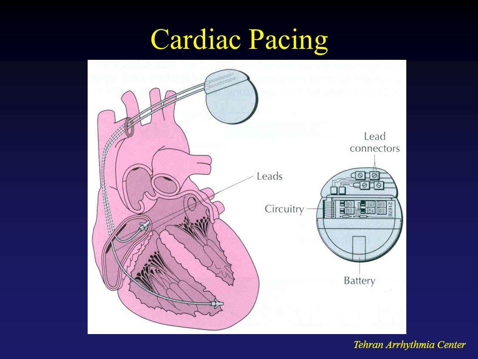 Tehran Arrhythmia Center Cardiac Pacing