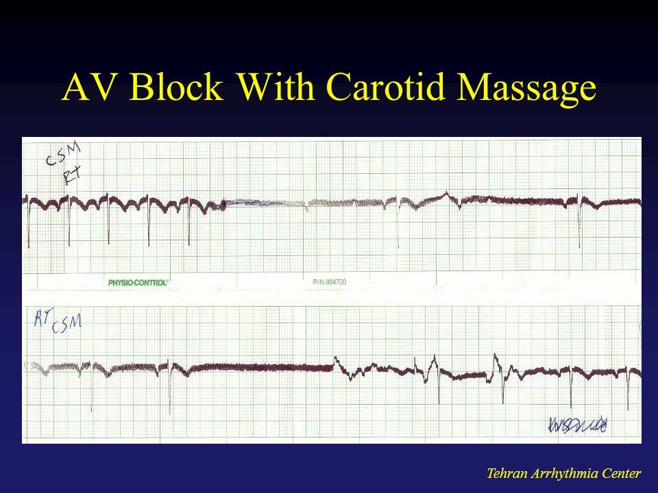 Tehran Arrhythmia Center AV Block With Carotid Massage