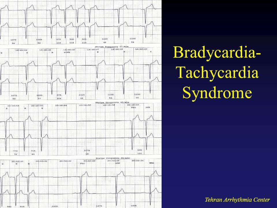 Bradycardia- Tachycardia Syndrome