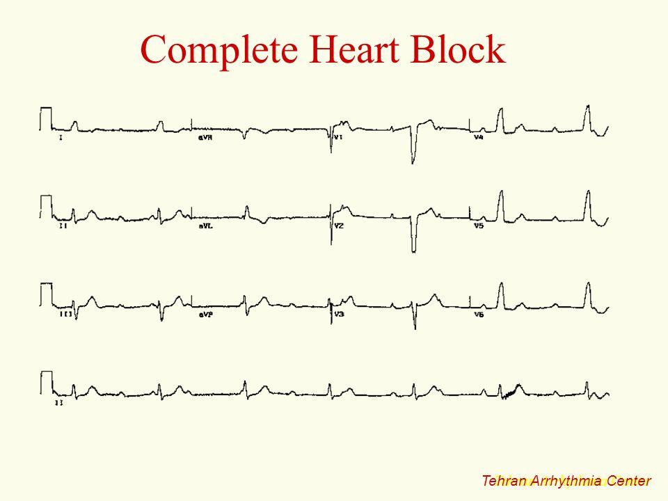 Complete Heart Block Tehran Arrhythmia Center