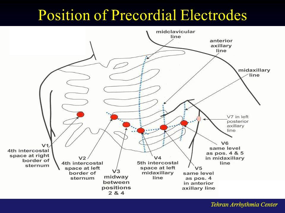 Tehran Arrhythmia Center Position of Precordial Electrodes