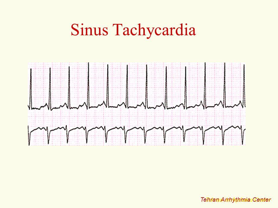 Sinus Tachycardia Tehran Arrhythmia Center