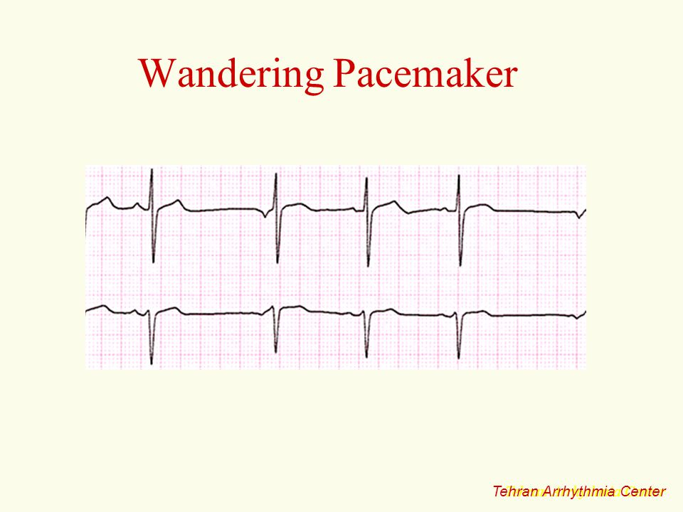 Wandering Pacemaker Tehran Arrhythmia Center