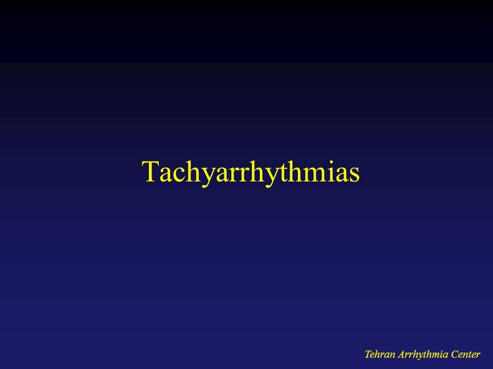 Tachyarrhythmias