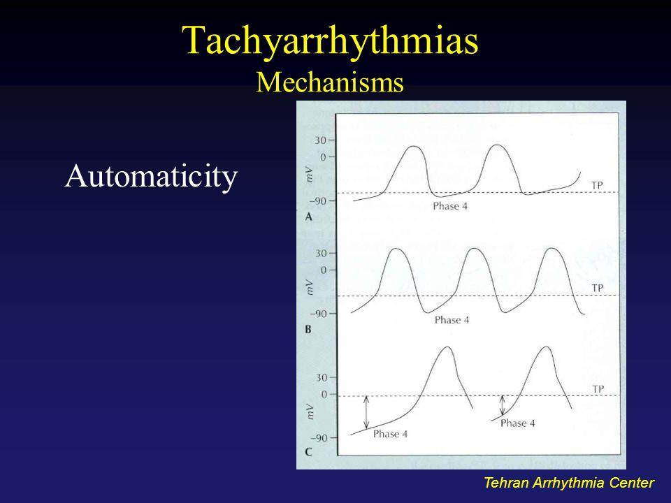 Tachyarrhythmias Mechanisms Automaticity Tehran Arrhythmia Center