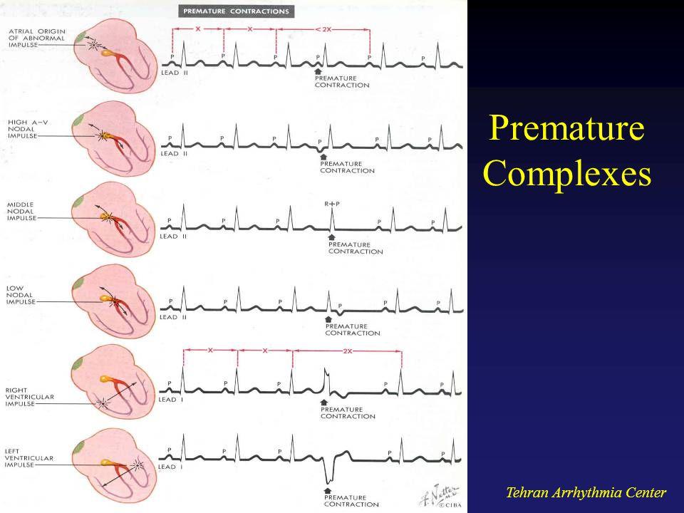 Premature Complexes