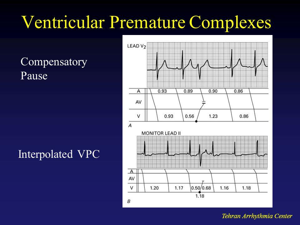 Tehran Arrhythmia Center Ventricular Premature Complexes Compensatory Pause Interpolated VPC