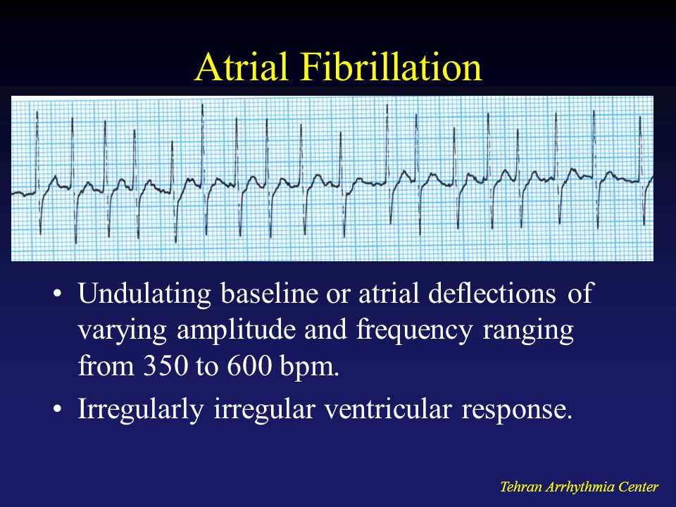 Tehran Arrhythmia Center Atrial Fibrillation Undulating baseline or atrial deflections of varying amplitude and frequency ranging from 350 to 600 bpm.