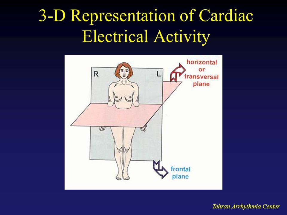 Tehran Arrhythmia Center 3-D Representation of Cardiac Electrical Activity