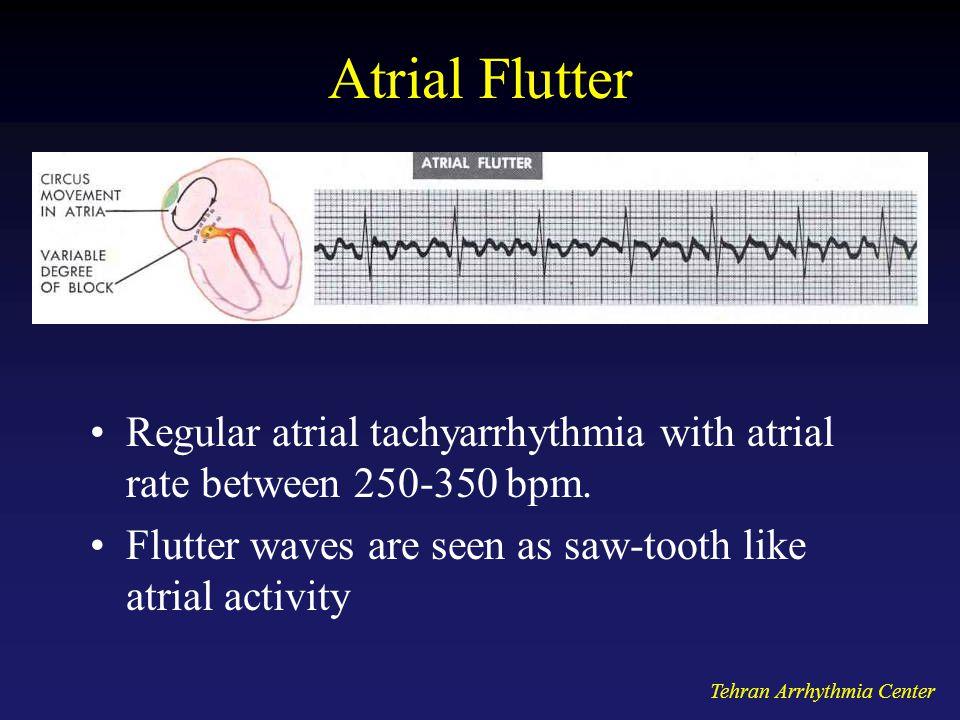 Tehran Arrhythmia Center Atrial Flutter Regular atrial tachyarrhythmia with atrial rate between 250-350 bpm. Flutter waves are seen as saw-tooth like