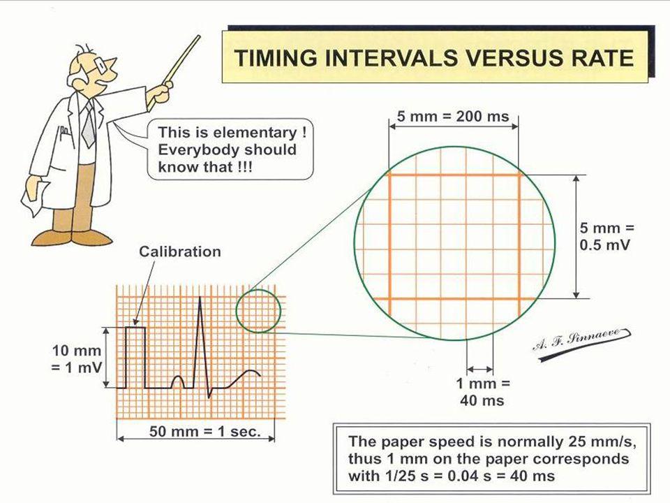 Tehran Arrhythmia Center Timing Intervals