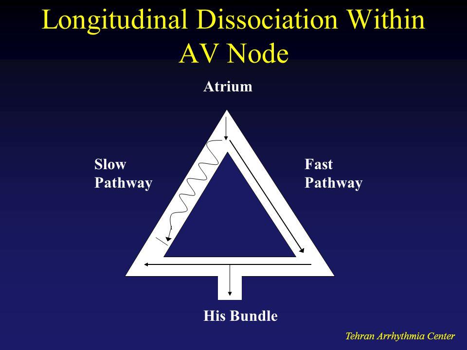 Tehran Arrhythmia Center Longitudinal Dissociation Within AV Node Slow Pathway Fast Pathway Atrium His Bundle