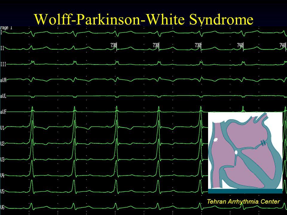 Tehran Arrhythmia Center Wolff-Parkinson-White Syndrome Tehran Arrhythmia Center