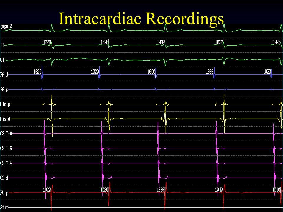 Tehran Arrhythmia Center Intracardiac Recordings