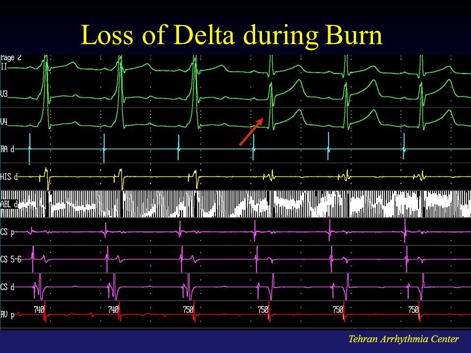 Loss of Delta during Burn