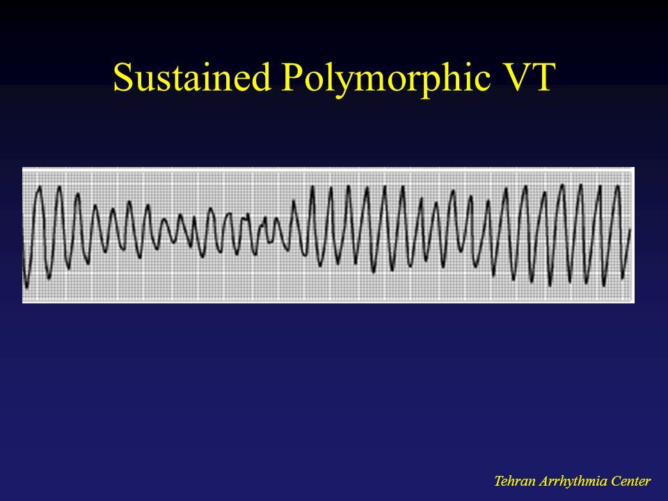 Tehran Arrhythmia Center Sustained Polymorphic VT